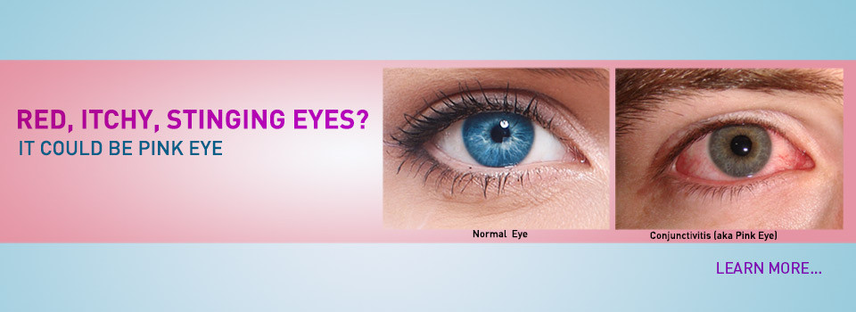pink-eye-slideshow