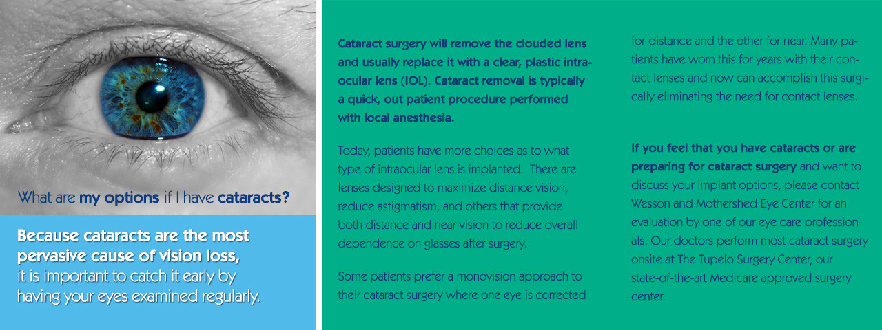 Cataract%20Surgery%20Slideshow